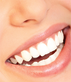 Whitening Teeth Bleaching Practice